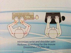 Schematische Darstellung der Sitzposition